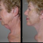 1-facialimplants