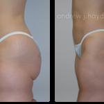 1-liposuction