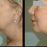 12-liposuction