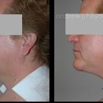 13-liposuction