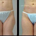 14-liposuction