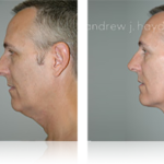 16-liposuction