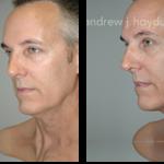 17-liposuction