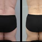 18-liposuction