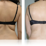 19-liposuction