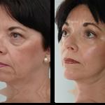 2-facialimplants