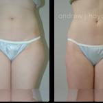 2-liposuction