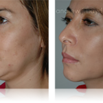 20-liposuction