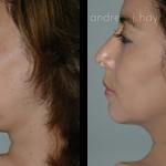21-liposuction
