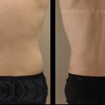 22-liposuction