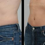 23-liposuction