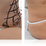 24-liposuction