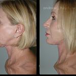 3-facialimplants