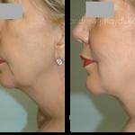 4-facialimplants