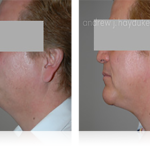 5-facialimplants