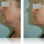 8-liposuction