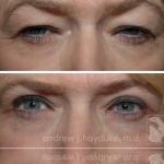 eyelids-214-m