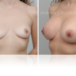 Breast lift 108_Tablet REVISED (2)