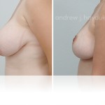 Breast lift 720_Tablet REVISED (3)