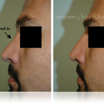 Facial Implants 72_Tablet