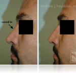 Rhinoplasty 215_Tablet