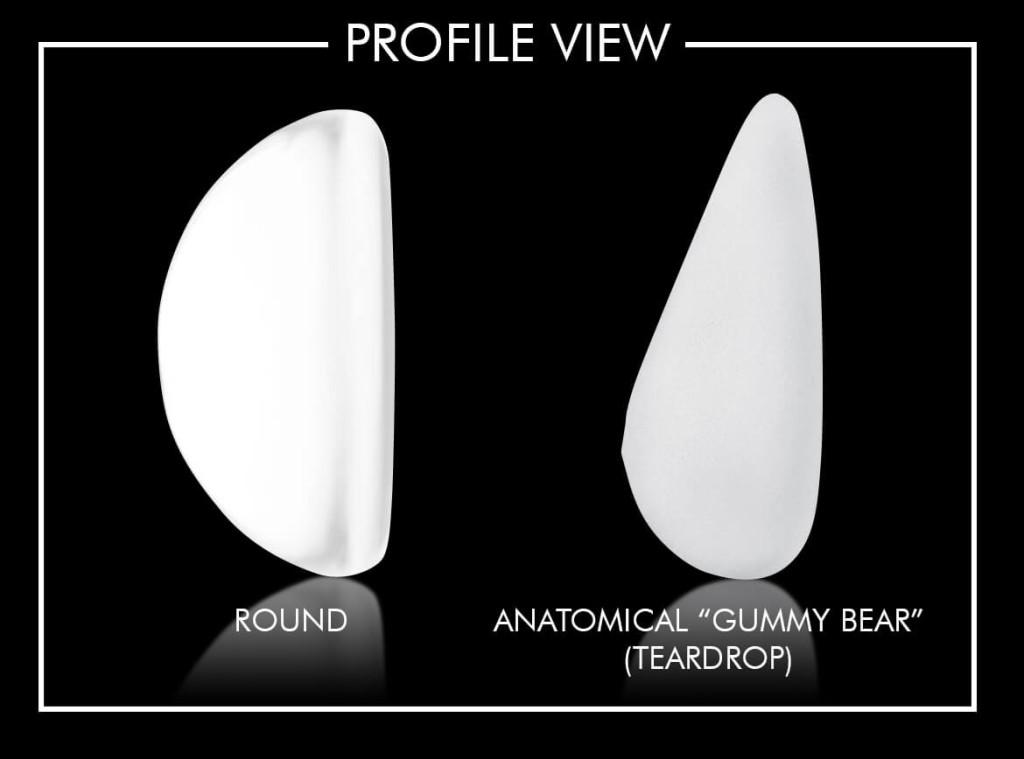 img-3-harris-gummy-bear-implant-shapes_edit_H
